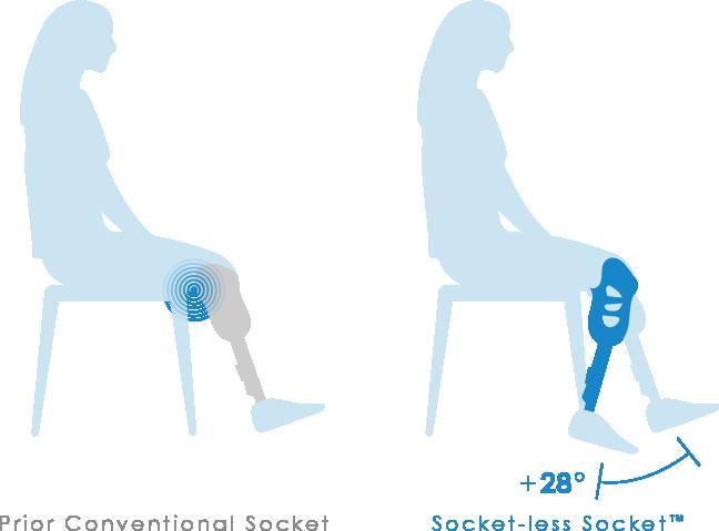 Socket-less Socket range of motion